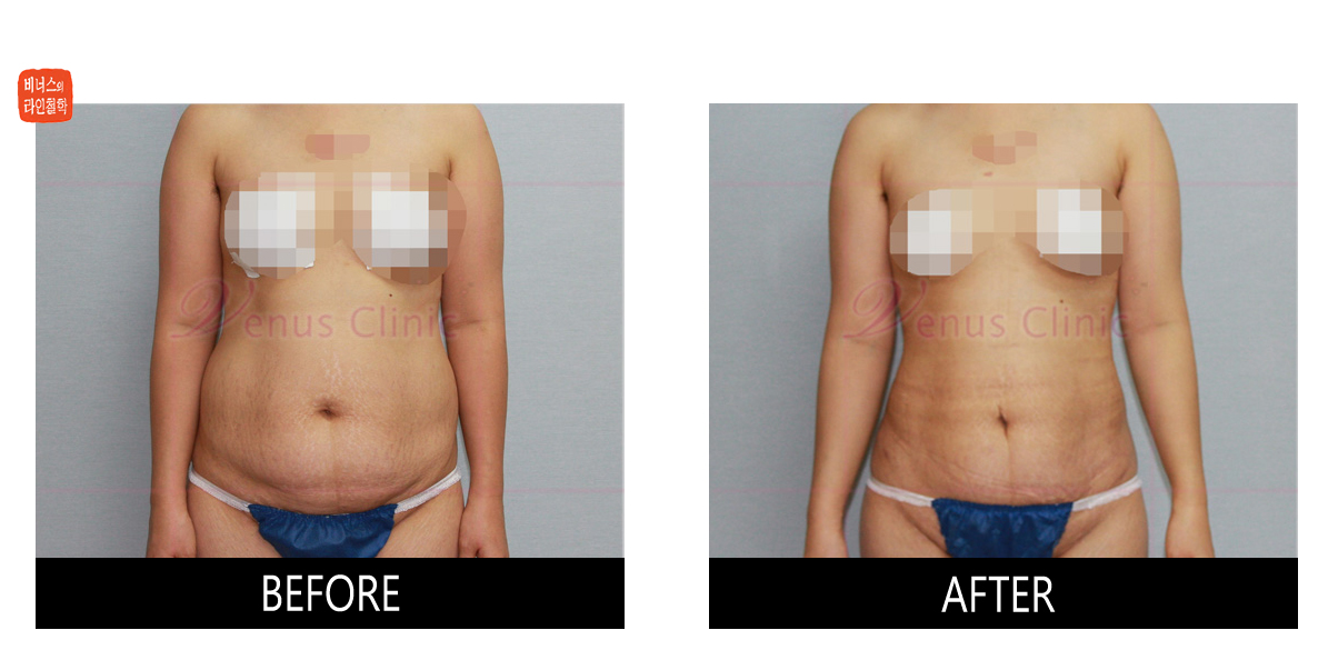 skin irregualarity after liposuction